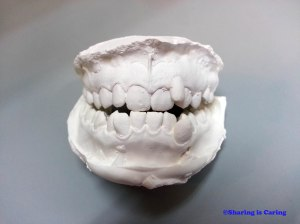 teeth mold