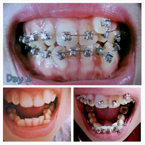 Sharing is caring cest ma vie life with braces after 6 months solutioingenieria Choice Image